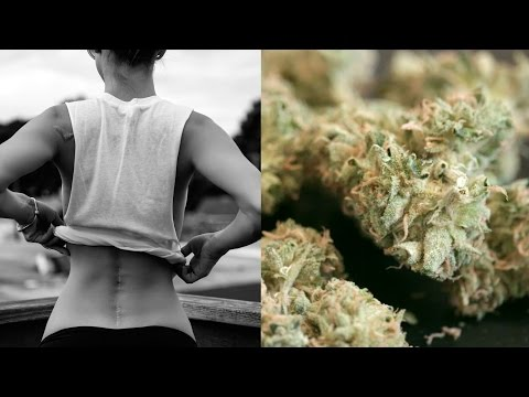 Medical marijuana for chronic back pain